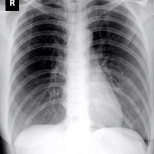 small_1.CXRCTThoraximagesofCOVID-19fromSingapore.pdf-000-fig1b - copia