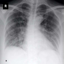 small_1.CXRCTThoraximagesofCOVID-19fromSingapore.pdf-003-fig4a - copia